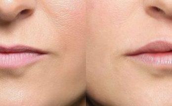 povečanje ustnice
